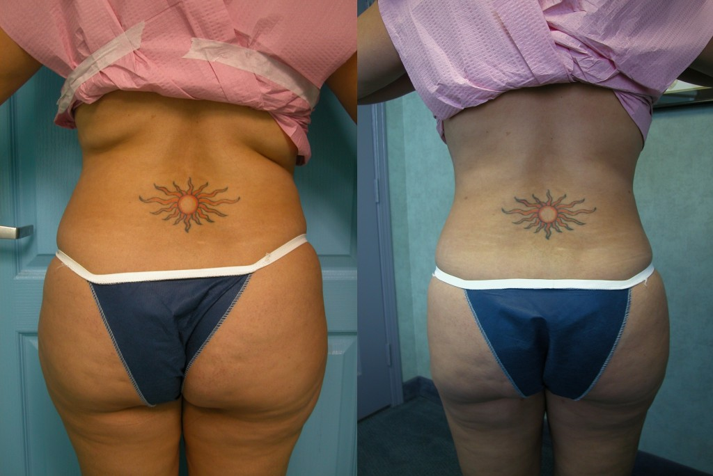 Tumescent Liposculpture, Temecula - before and after photos