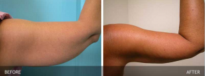 Smartlipo™ Before and After Photos
