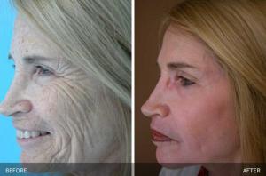 Skin Rejuvenation Before & After Photos