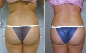 Buttock Augmentation Using Fat Transfer - Before and After Picture