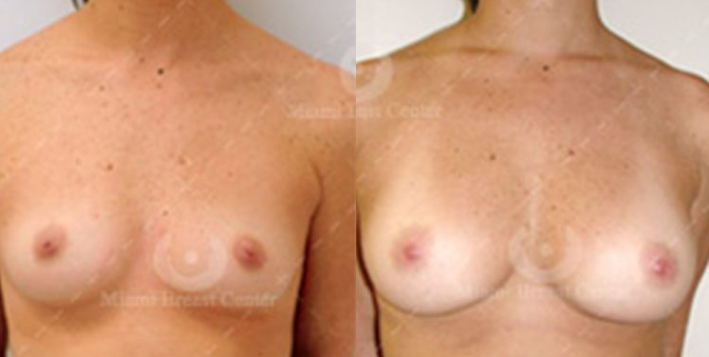 Before and After Photos for Breast Augmentation with Fat Transfer