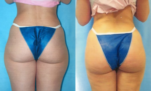 Butt Augmentation by Dr. ONeil