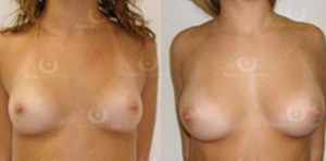 Natural Breast Augmentation by ONeil