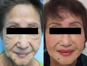 liquid-facelift-before-and-afters by Dr. ONeil