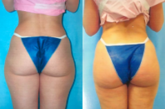 Fat Transfer Butt Augmentation Before and After Results