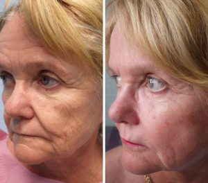 Fat Transfer to the Face Patient Before and After