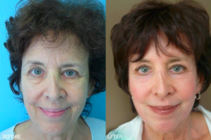 Skin Rejuvenation Patient by Dr. ONeil