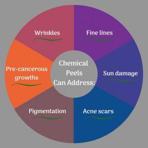 Chemical Peels Can-img-blog