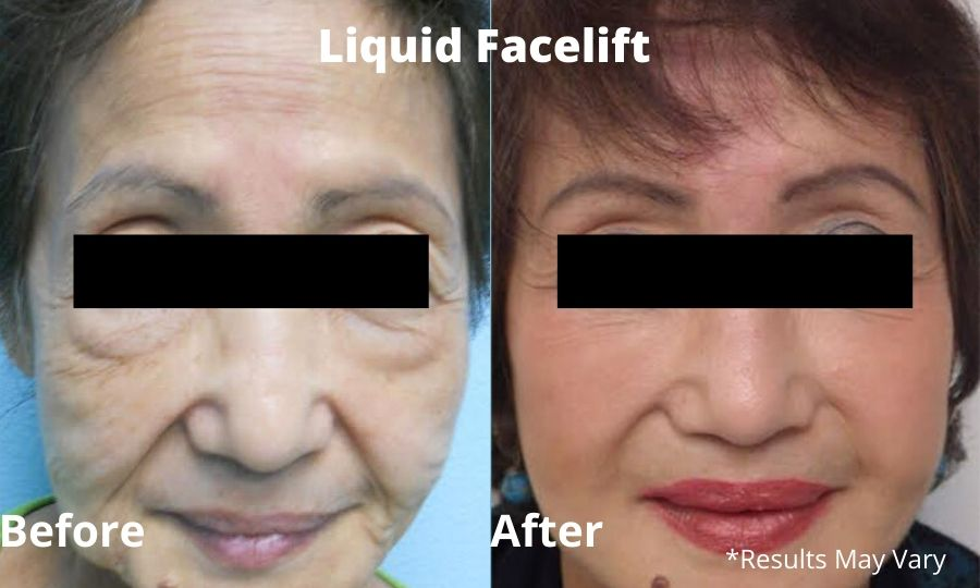 Liquid facelift before and after by Dr. Kelly O'Neil