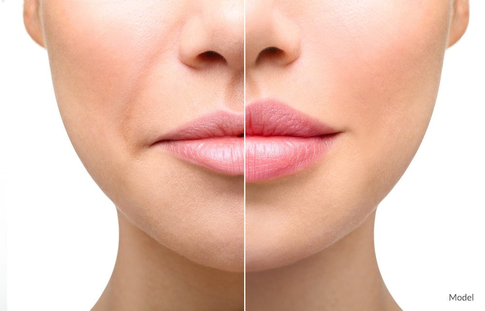 Before and after image showing the potential results of a lip filler.